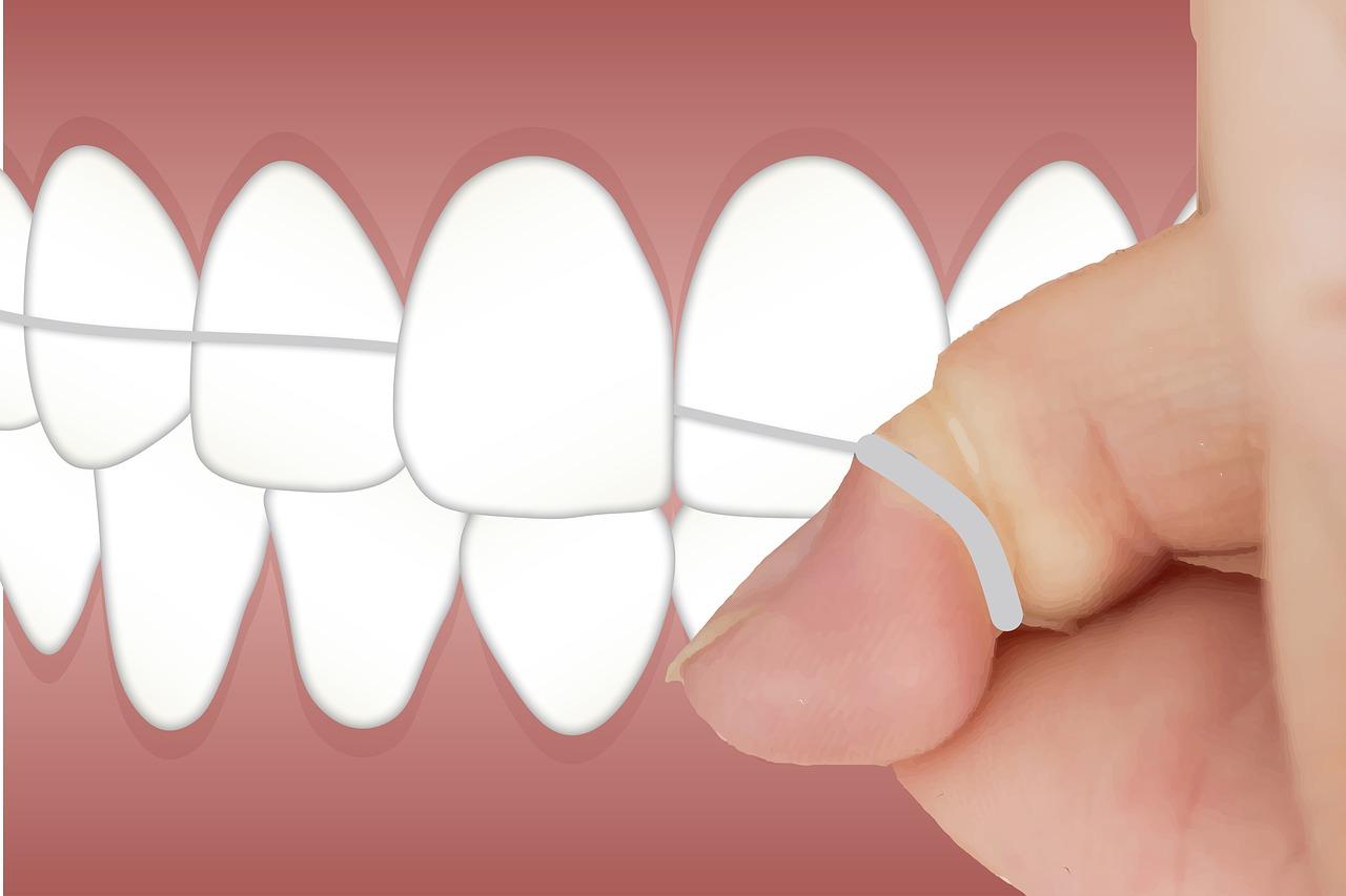 Oral Hygiene flossing