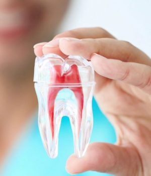 root canal service
