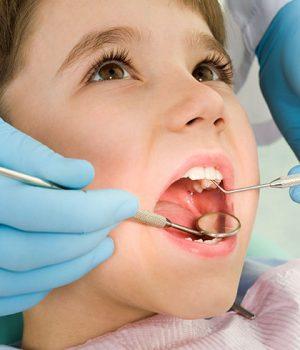 kids dental services
